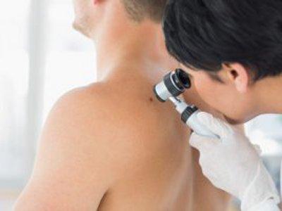 """Federfarma scende in campo per 'combattere' il melanoma. Pagliacci: """"Farmacista sempre in prima linea sulla prevenzione"""""""